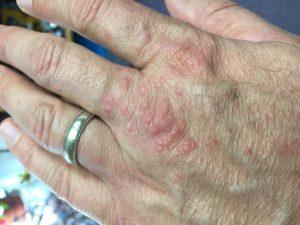 english ivy rash